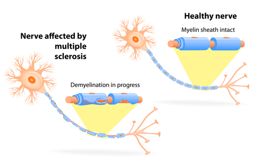 study shows multiple sclerosis patients live 6 years less on, Skeleton