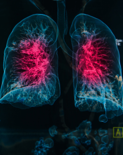 New COPD Study By GlaxoSmithKline Seeks To Test Efficacy of New Drugs