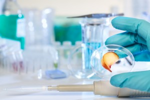biomarkers and prostate cancer