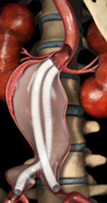 Texas Heart Institute Implants New Device to Treat Aortic Aneurysm