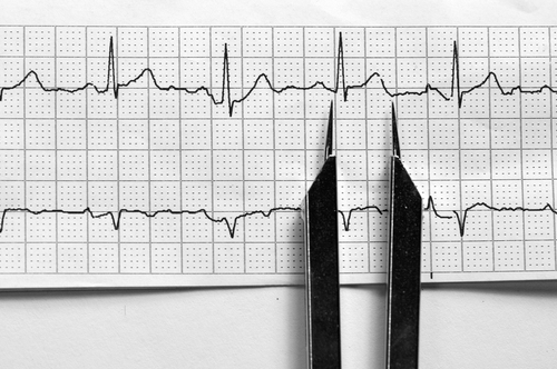 Researchers Develop First Minimally Invasive Gene Therapy Procedure to Treat Heart Rhythm Disorders