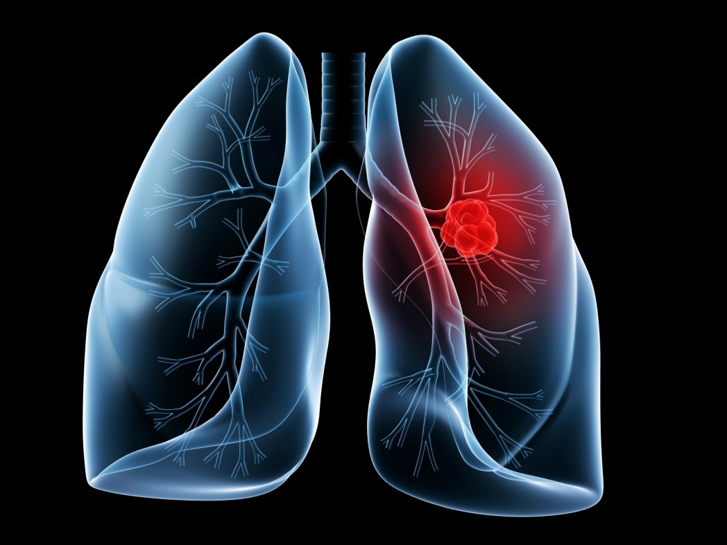 lung cancer research Lung cancer may be treated with surgery, chemotherapy or other medications,  radiation therapy, photodynamic therapy, laser therapy, or a combination of.