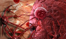 Texas Cancer Plan Heralded As New Model For Other States