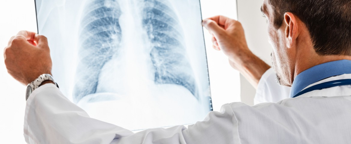 UT Southwestern Researchers Identify Potential New Target for Small Cell Lung Cancer Therapies